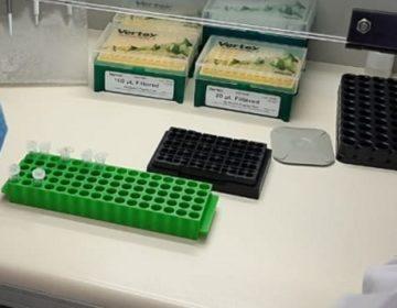 Funed habilita 19 laboratórios para o teste de coronavírus em Minas Gerais