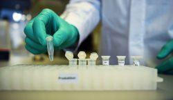 Chinesa SinoVac começa etapa final de testes da vacina contra…