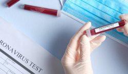 PJF recebe quase quatro mil resultados de exames covid-19 da…